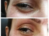 کوچک کردن بینی بدون جراحی،رفع چین و چروک صورت در شیپور-عکس کوچک