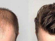 خدمات پروتز و ترمیم موهای کم پشت  در شیپور