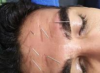 آموزش طب سنتی در شیپور-عکس کوچک