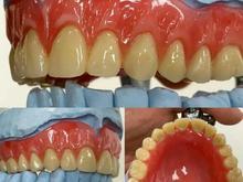 دندانسازی دینی باضمانت کامل در شیپور