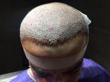 کاشت مو مناسب با بودجه شما در شیپور