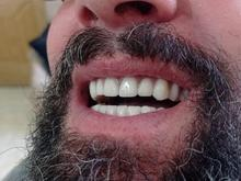 دندانسازی سیار تمام مناطق تهران کرج و دیگر استانها قبول بیمه در شیپور