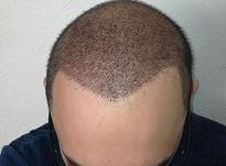 کاشت موی طبیعی با بیشترین تراکم کمترین هزینه در شیپور-عکس کوچک