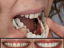 لمینت دندان در شیپور