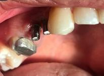 کاشت (دندان)ایمپلنت با کمک لیزر در شیپور-عکس کوچک