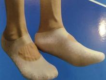 جوراب ترک پا در شیپور