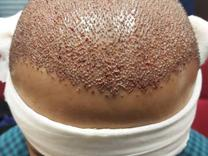 کاشت مو با بیشترین تراکم و مناسبترین قیمت، کاشت موی الیا در شیپور