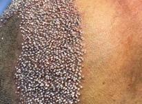 کاشت مو ریش ابرو در شیپور-عکس کوچک