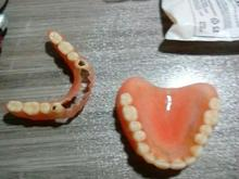 به یک دندان ساز ماهر متحرک کار نیاز دارم در شیپور